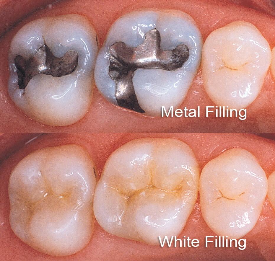 white filling
